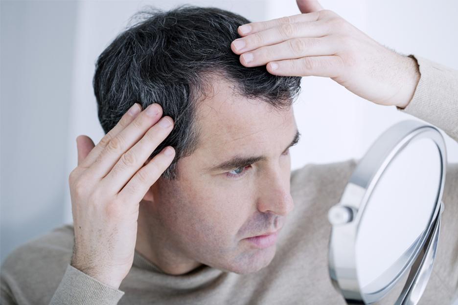 Caída de cabello crónica